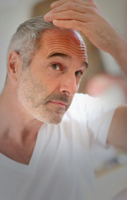 bioestetica-salud-vida-estica-rejuvenecimiento-foliculo-piloso-6a