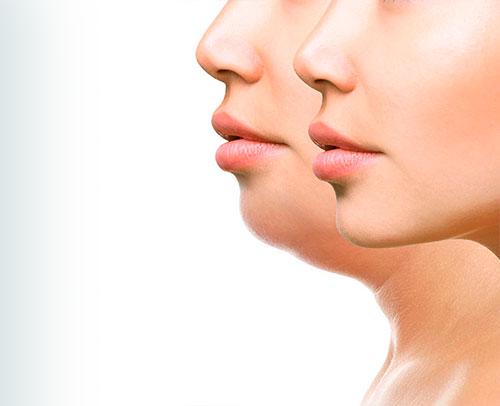 bioestetica-salud-vida-estica-lipodilucion-emulgente-papada-mejillas-1a
